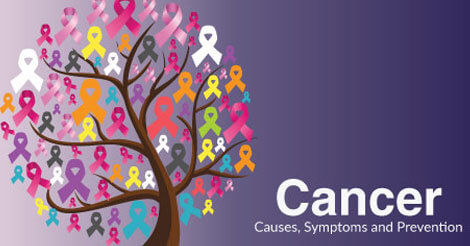 Cancer causes, symptoms prevention